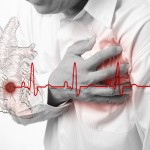 Heart Attack- Know the risk