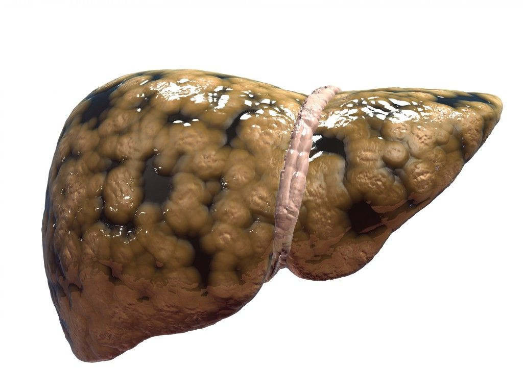 Fatty Liver Diseases