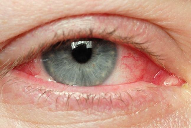 Symptoms of acanthamoeba keratitis