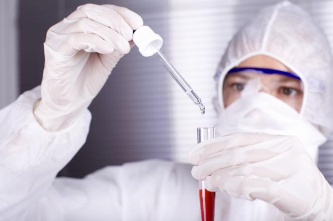 Causes of Ebola virus disease