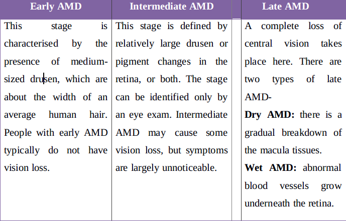stages of AMD