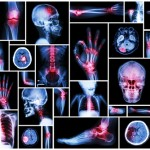 Arthritis – Don't Make Joint Pain An Old Age Companion