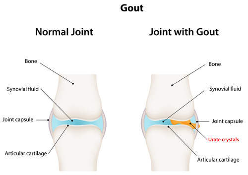 Gout- A form of Arthritis