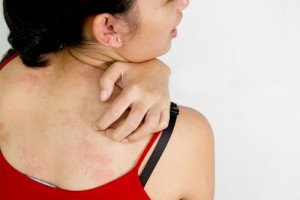 Detailing Hives- Symptoms, Causes, Treatment, and Prevention!