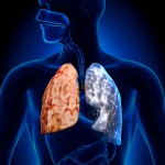 Differences between COPD and Asthma