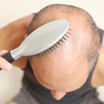 Prevent Hair Loss in Men