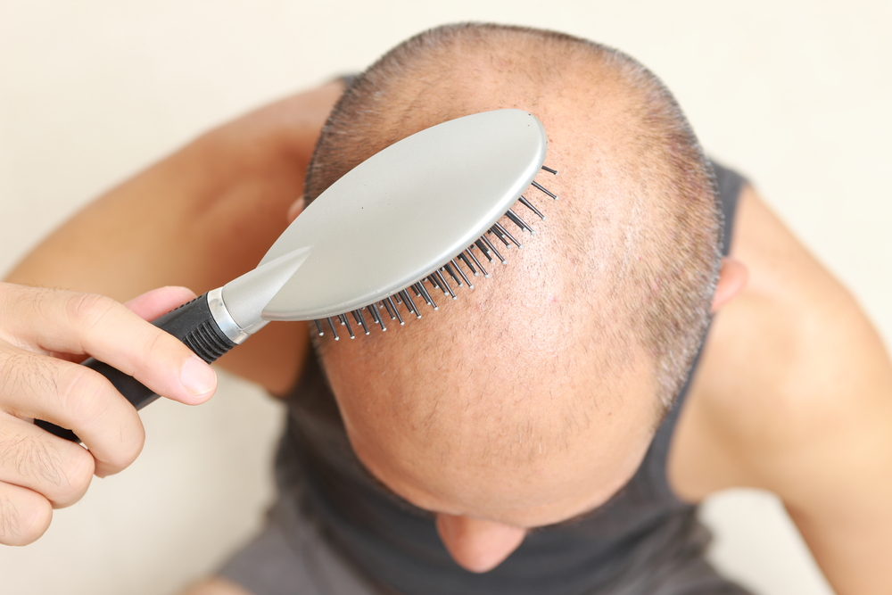 Prevent Hair Loss in Men