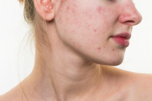 Bad Habits That Can Cause Pimples