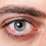 Coping with conjunctivitis