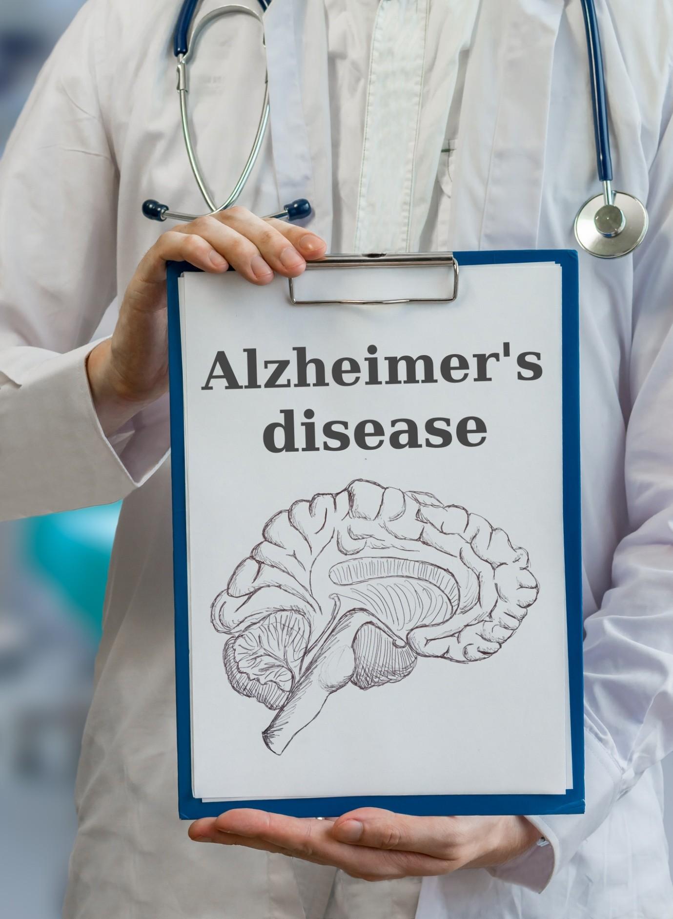 Can Diet Prevent Alzheimer's disease?