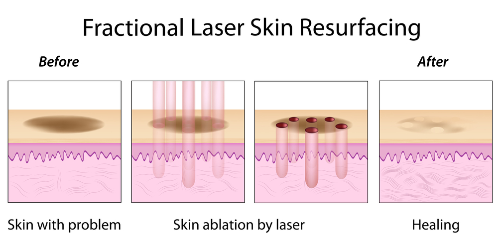 Acne Laser Treatments Information