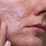 Clear Acne Scars Fast & Simple with the Best Methods