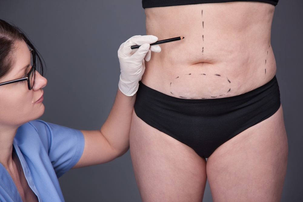 Bad effects of weight loss surgery