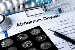 How to treat and fully restore memory function with new Alzheimer Treatment