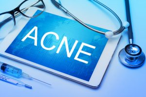Tips and Treatments to Help Clear Your Severe Skin Acne