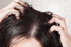 Amazing Benefits Of Neem (Azadirachta) Shampoo For Dandruff