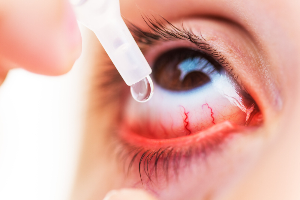 Tips to Tackle Eye Allergies