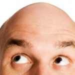 hair loss and diabetes