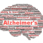 What Are the 7 Stages of Alzheimer's?