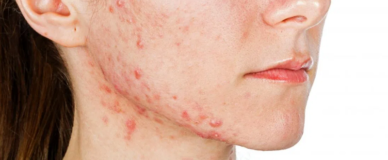 Do's & Don'ts of Fighting Acne